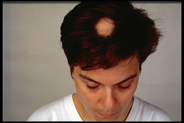 Alopecia2